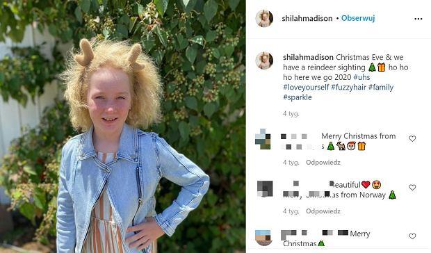 Obcy ludzie dotykają jej włosów i robią sobie zdjęcia. Dziewczynka cierpi na niezwykle rzadką chorobę