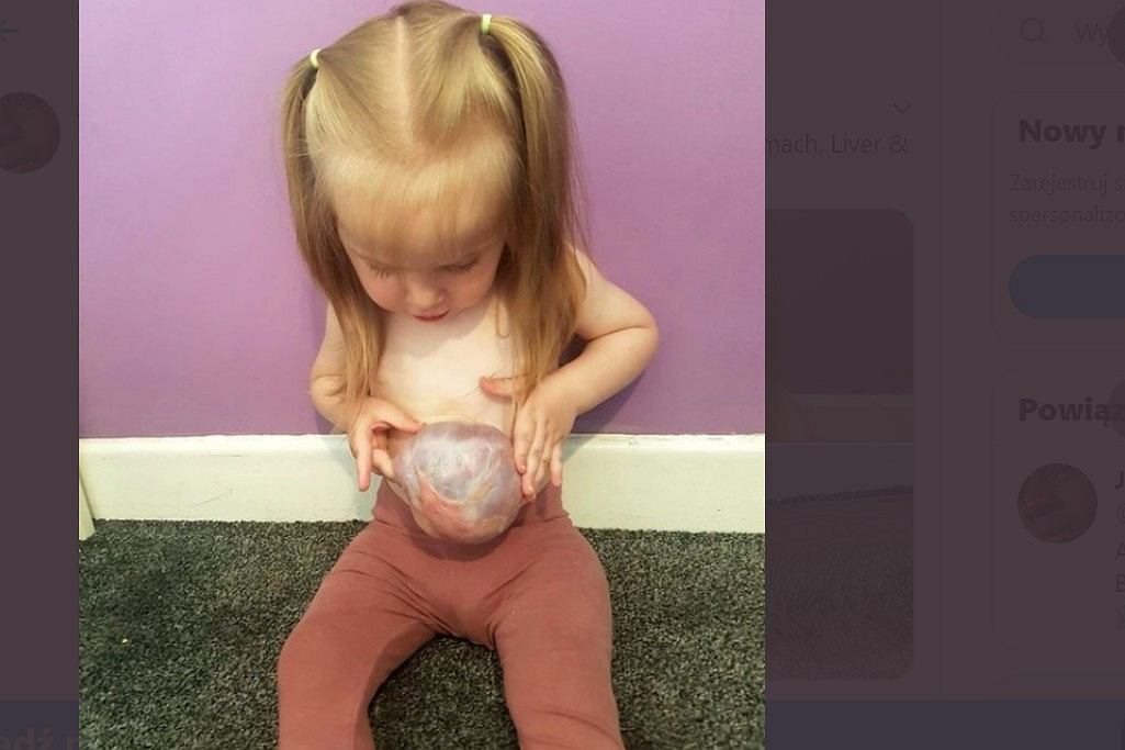 Dziewczynka z narządami poza ciałem