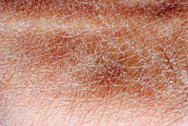 Pojawiające się na skórze, typowe dla choroby zmiany przypominają rumień lub oparzenie słoneczne