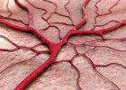 Mikroskopowe zapalenie naczyń