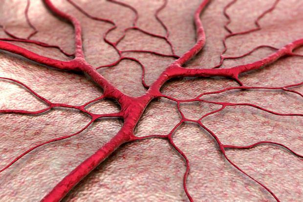 Mikroskopowe zapalenie naczyń prowadzi do martwicy naczyń i najczęściej dotyka osoby starsze