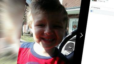 Chłopiec zmarł po tym, jak spróbował cynamonu