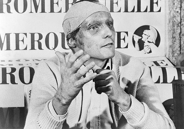 Niki Lauda podczas konferencji po wypadku w Grand Prix Niemiec, 12 września 1976