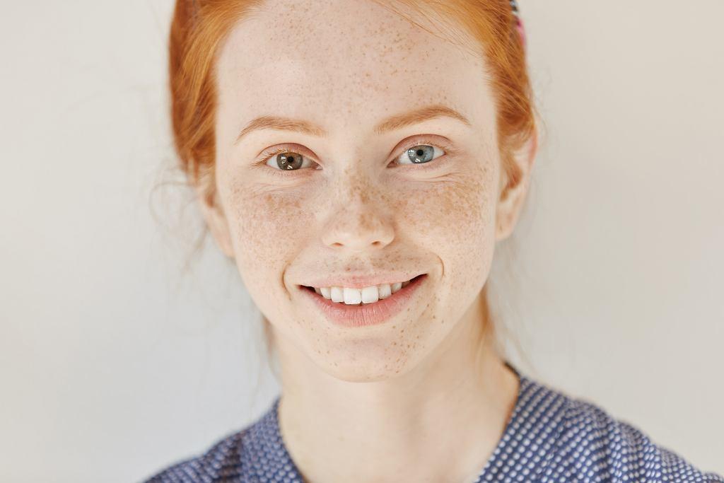 Heterochromia (zdjęcie ilustracyjne)