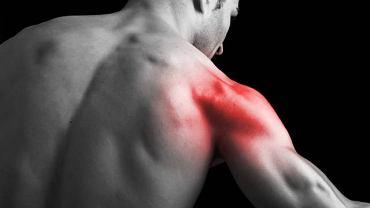 Bólom rzutowym bardzo często towarzyszy silne napięcie mięśniowe