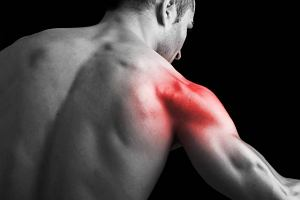 Ból rzutowany