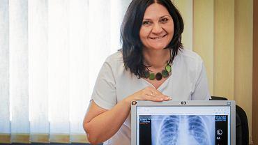 Doktor Katarzyna Musioł, ordynatorka oddziału pediatrii w Wojewódzkim Szpitalu Specjalistycznym nr 3 w Rybniku
