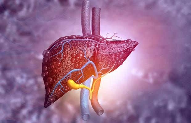 Przewlekłe choroby wątroby: rodzaje, objawy. Jak zapobiegać chorobom wątroby