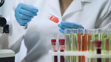 Na Wydziale Chemii na UW pracują nad lekiem przeciwbólowym bardziej skutecznym niż morfina. Działa 5000 razy silniej