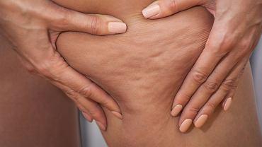 Zazwyczaj nie trzeba uciskać skóry, by cellulit był bardzo widoczny. Komu to przeszkadza? Wielu osobom. Jak tak, to warto wówczas szukać pomocy