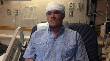 Chase Dellwo w szpitalu po ataku niedźwiedzia
