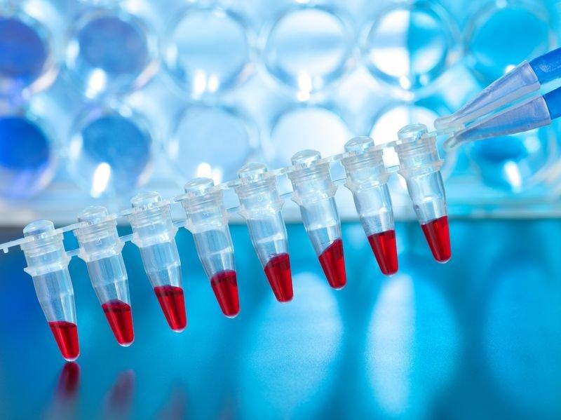 Testy mogą pokazać, czy mamy genetycznie uwarunkowaną tendencję do tycia i czy jest ona związana z metabolizmem tłuszczów czy węglowodanów.