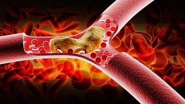 Podwyższony poziom cholesterolu znacznie zwiększa ryzyko chorób serca