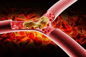 Poziom cholesterolu u osób poniżej 45 lat pokazuje, czy zachorują w przyszłości na serce