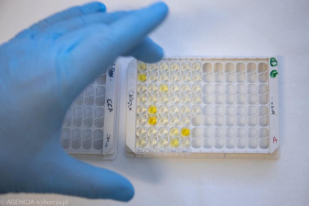 Testowanie na obecność koronawirusa
