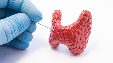 Guzek  na tarczycy jest  wskazaniem do biopsji