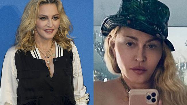61-letnia Madonna pozuje topless, opierając się na kuli. Nawet brak stanika nie odwraca uwagi od jej twarzy. Nie przypomina już siebie?