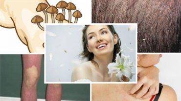 Choroby skóry zamykają w domu, stygmatyzują. Im więcej o nich wiesz, tym lepiej. Pokonanie wstydu i strachu to pierwszy krok do właściwego leczenia