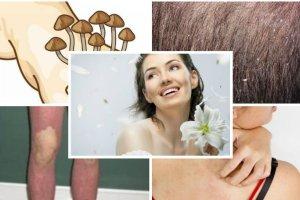 Choroby skóry wciąż stygmatyzują i zamykają w domu. Nie bój się ich!