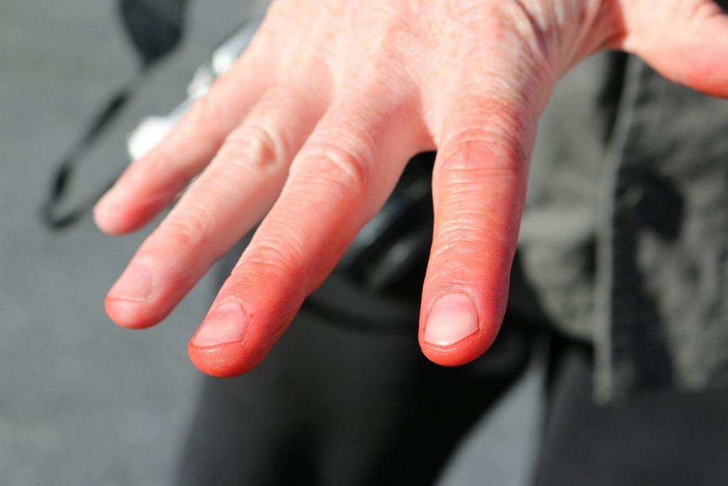 Odmrożenie to uszkodzenie skóry, do którego dochodzi poprzez kontakt skóry z niską temperaturą i wilgocią