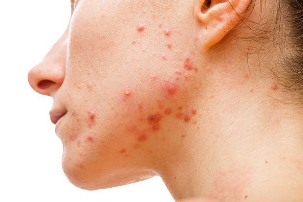 Choroby skóry - 6 najczęściej występujących