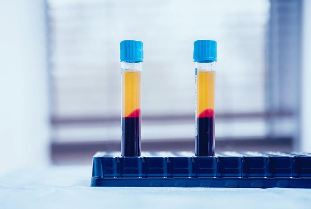 Osocze krwi, zwane też plazmą, to płynny składnik krwi, w którym unoszą się tzw. upostaciowane składniki krwi