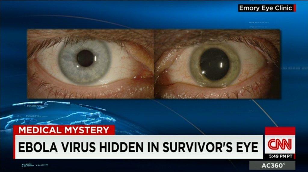 Wirus eboli w oku lekarza