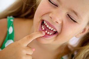 Zęby mleczne - co warto wiedzieć o ich leczeniu?