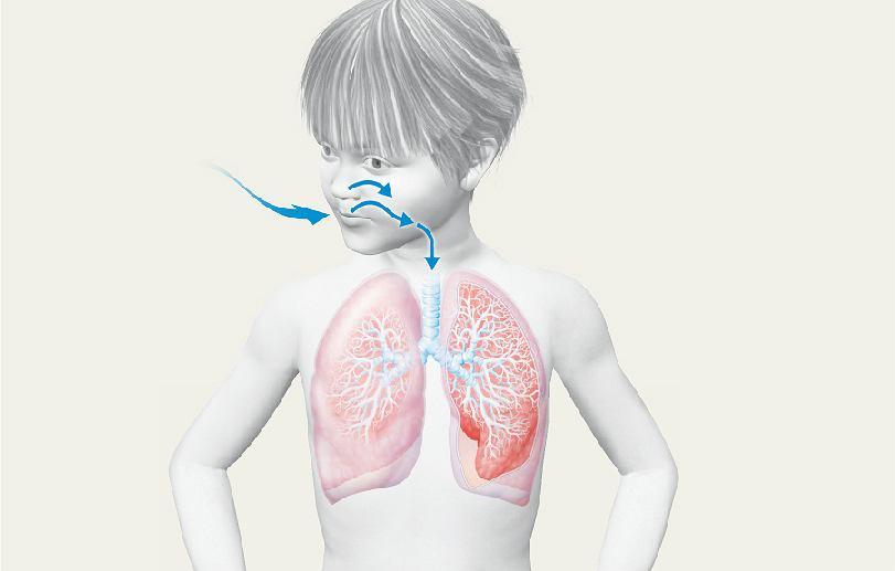 Alergia A Może To Astma