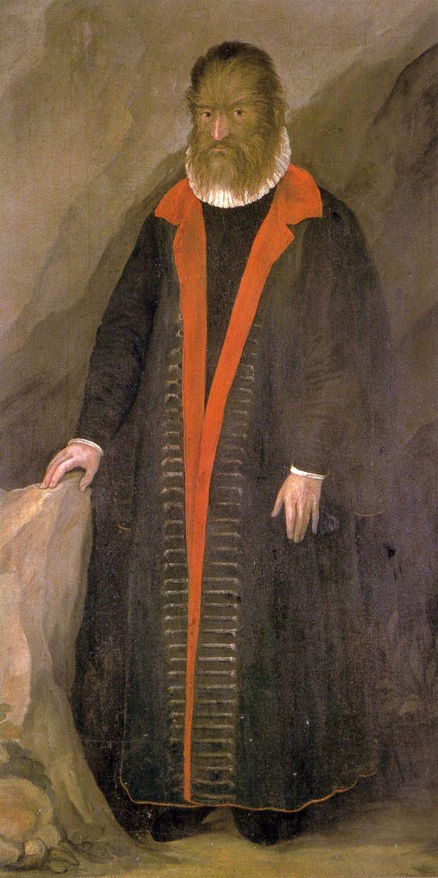 Petrus Gonzales, pierwszy znany przypadek hipertrichozy (1648 r.)