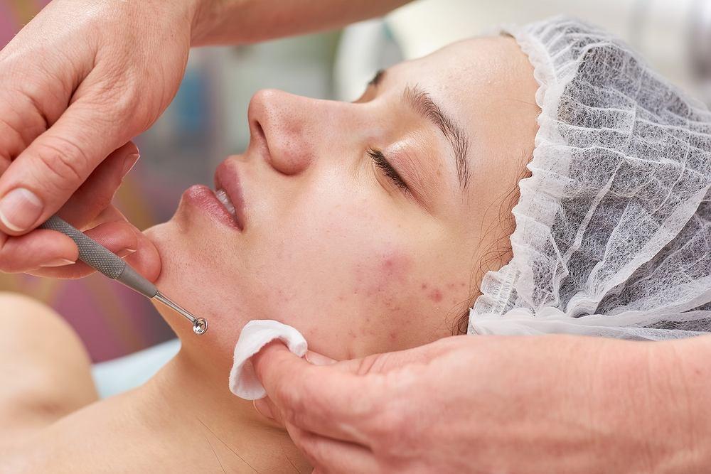Oczyszczanie manualne jest bardzo popularną metodą efektywnego usuwania ze skóry niedoskonałości