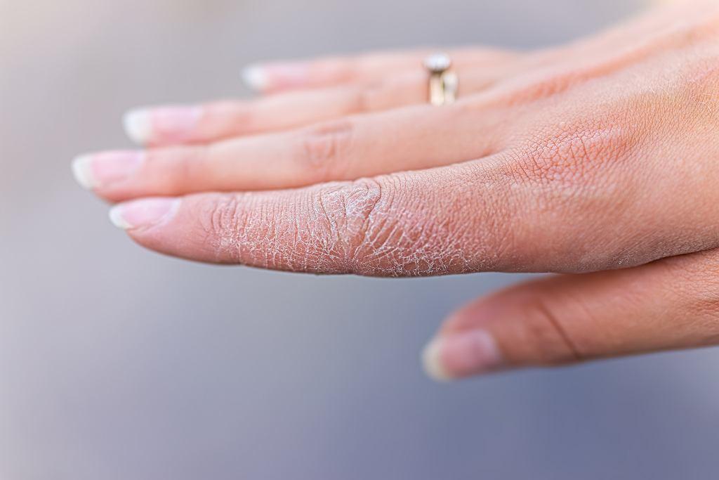 Co na suche i spierzchnięte dłonie? Skuteczne kremy do 9 zł