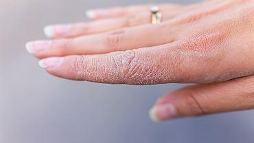 Co zrobić z przesuszonymi przez ciągłe mycie i odkażanie dłońmi?