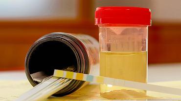 Krew w moczu dziecka może świadczyć o infekcji lub chorobie, ale jej obecność w moczu może być pozorna.