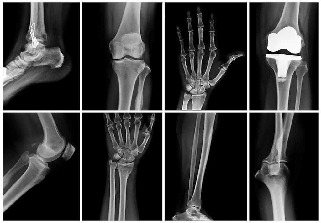 Badanie RTG, zwane potocznie rentgenem lub prześwietleniem, to nieinwazyjne badanie obrazowe i dwuwymiarowy obraz, który jest zarejestrowany podczas prześwietlania danej część ciała pacjenta promieniami rentgenowskimi (promieniowanie X)