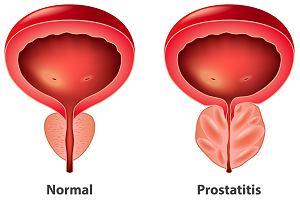 jak długo nietrzymanie moczu po operacji prostaty forum