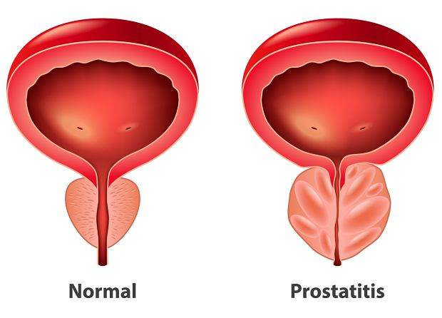 Męska sprawa - erekcja i prostata