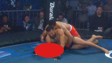 Koszmarna kontuzja podczas walki MMA