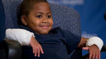 Zion na konferencji, kilka dni po podwójnym przeszczepie dłoni