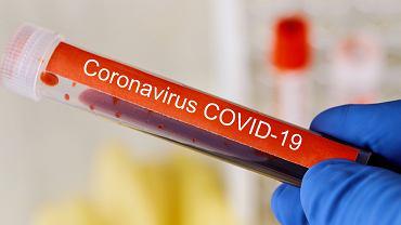 Koronawirus  - próbka krwi