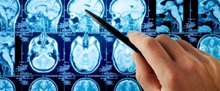Kanada: Zaobserwowano tajemniczą chorobę mózgu