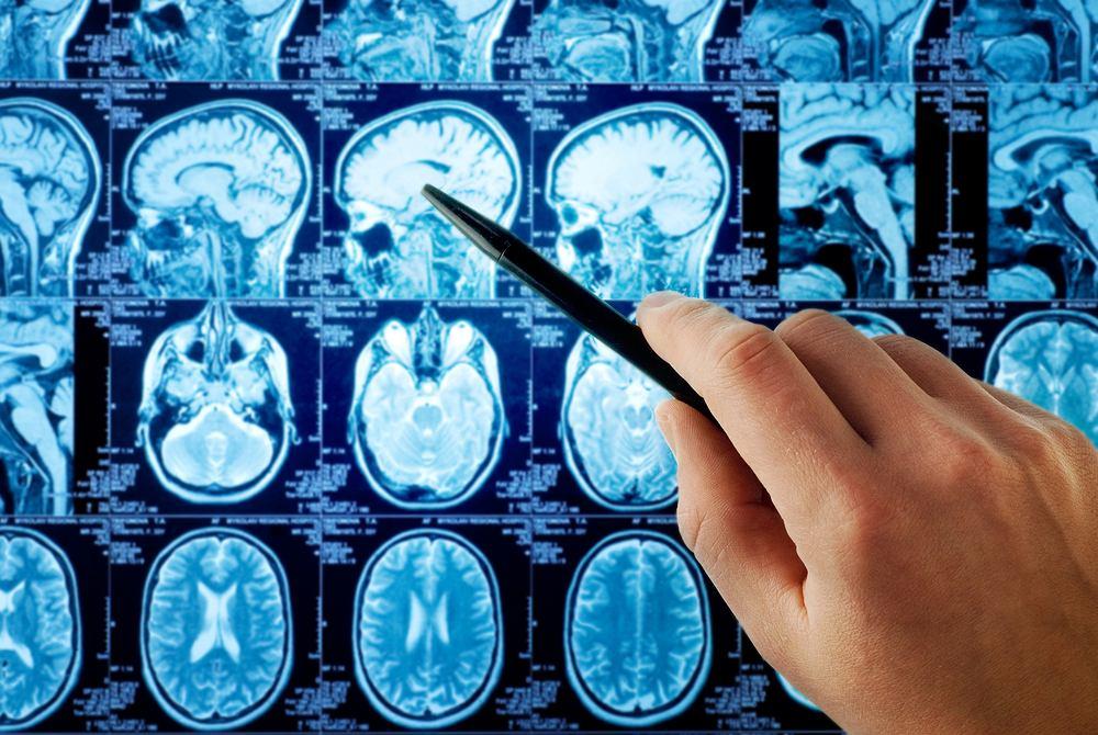 Lekarze szukają wyjaśnienia tajemniczej choroby mózgu, którą zaobserwowano Kanadzie