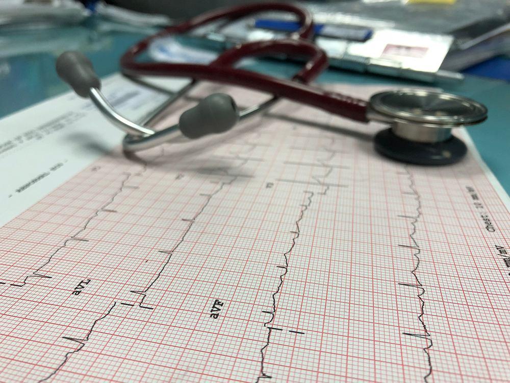 EKG wykorzystuje się do rozpoznawania między innymi wad zastawek, arytmii, choroby wieńcowej czy migotania przedsionków