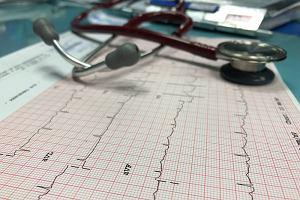 EKG. Na czym polega elektrokardiografia spoczynkowa? Jakie są wskazania do badania?