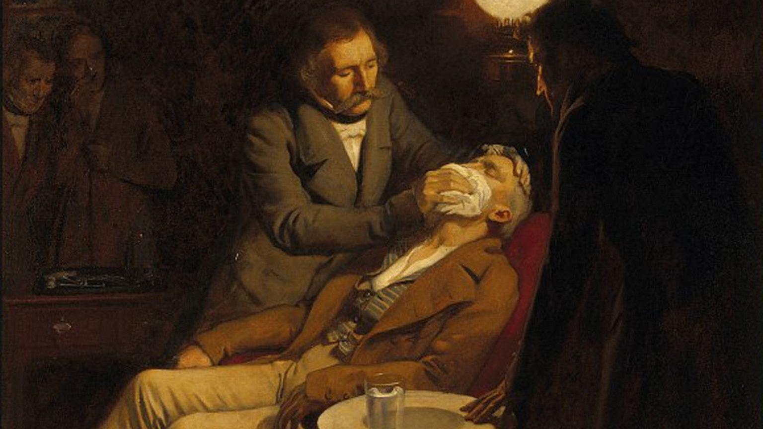 Obraz ilustrujący pierwsze użycie eteru w zabiegu dentystycznym. Ernest Board, 1846 r.