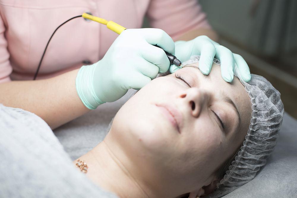 Elektroliza w kosmetyce to metoda depilacji, która daje bardzo trwałe efekty
