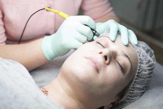 Elektroliza w kosmetyce, czyli depilacja. Co to jest, dla kogo i na czym polega?