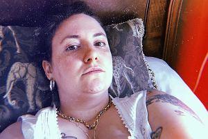 Lena Dunham cierpi na nieuleczalną chorobę