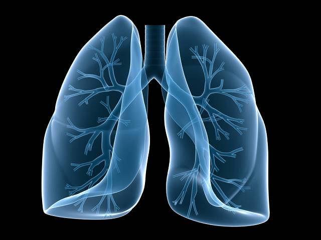 Gruźlica jest choroba zakaźną, która w większości przypadków atakuje płuca
