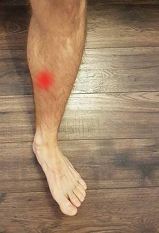 Kontuzja stopy: shin splints